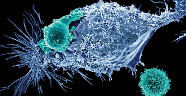 Car T Cell Therapy 2