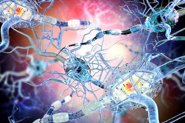 Damaged Nerve Cells, Concept For Neurodegenerative And Neurological Disease, Tumors, Brain Surgery.